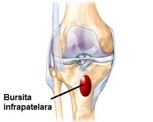 bursita infrapatelară a tratamentului articulației genunchiului drept durere când atinge articulația