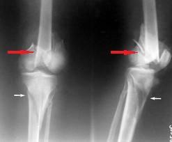 tratamentul fracturilor de condil condil pulbere de condroitină cu glucozamină