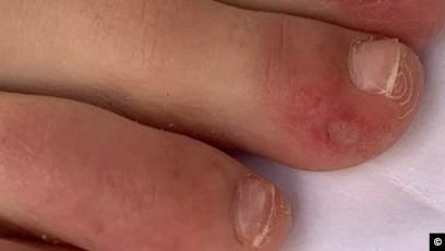 Pete roșii pe corpul durerilor articulare Simptomele si diagnosticul in lupusul eritematos sistemic