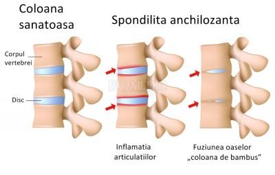 boala serica a articulatiilor si dureri musculare