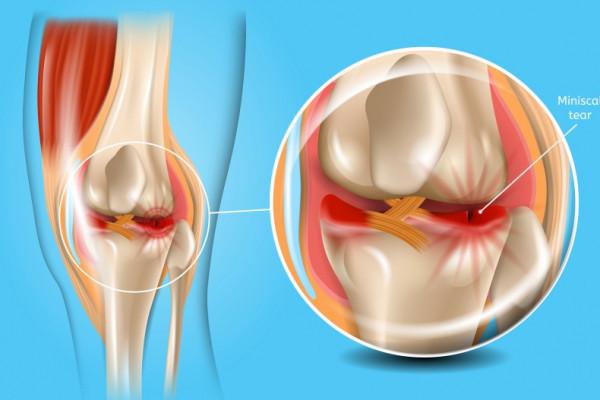 cum să amelioreze artroza articulației șoldului