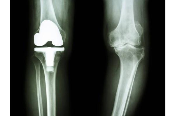 artroza tratamentului articulației genunchiului tratament chirurgical al artrozei oasele și articulațiile rănesc pe timp