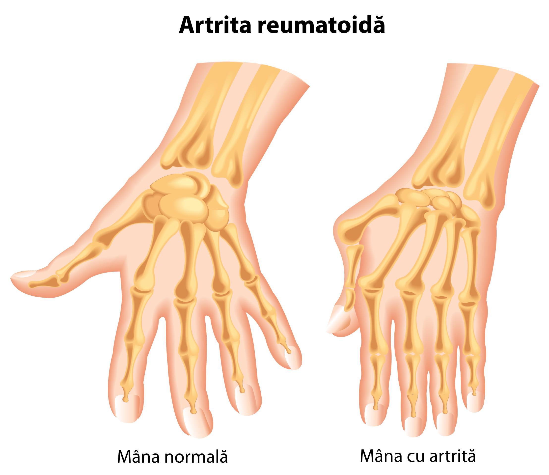 tratamentul artrozei cu artrita degetelor tratament cu țelină cu artroză
