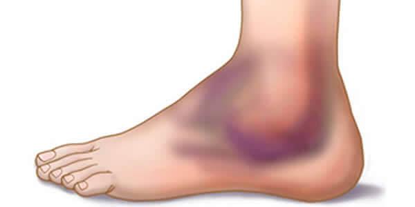 exacerbarea simptomelor osteoartritei gleznei muzica vindecă articulațiile