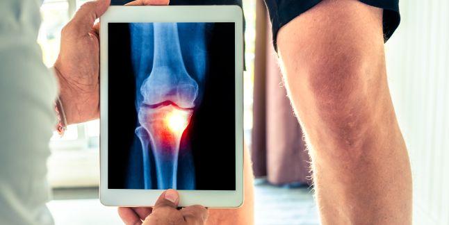 tratamentul artritei articulațiilor cu foamea suplimente de restaurare a cartilajelor