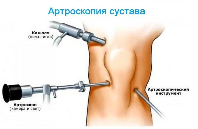 mușchii și articulațiile doare ce să facă