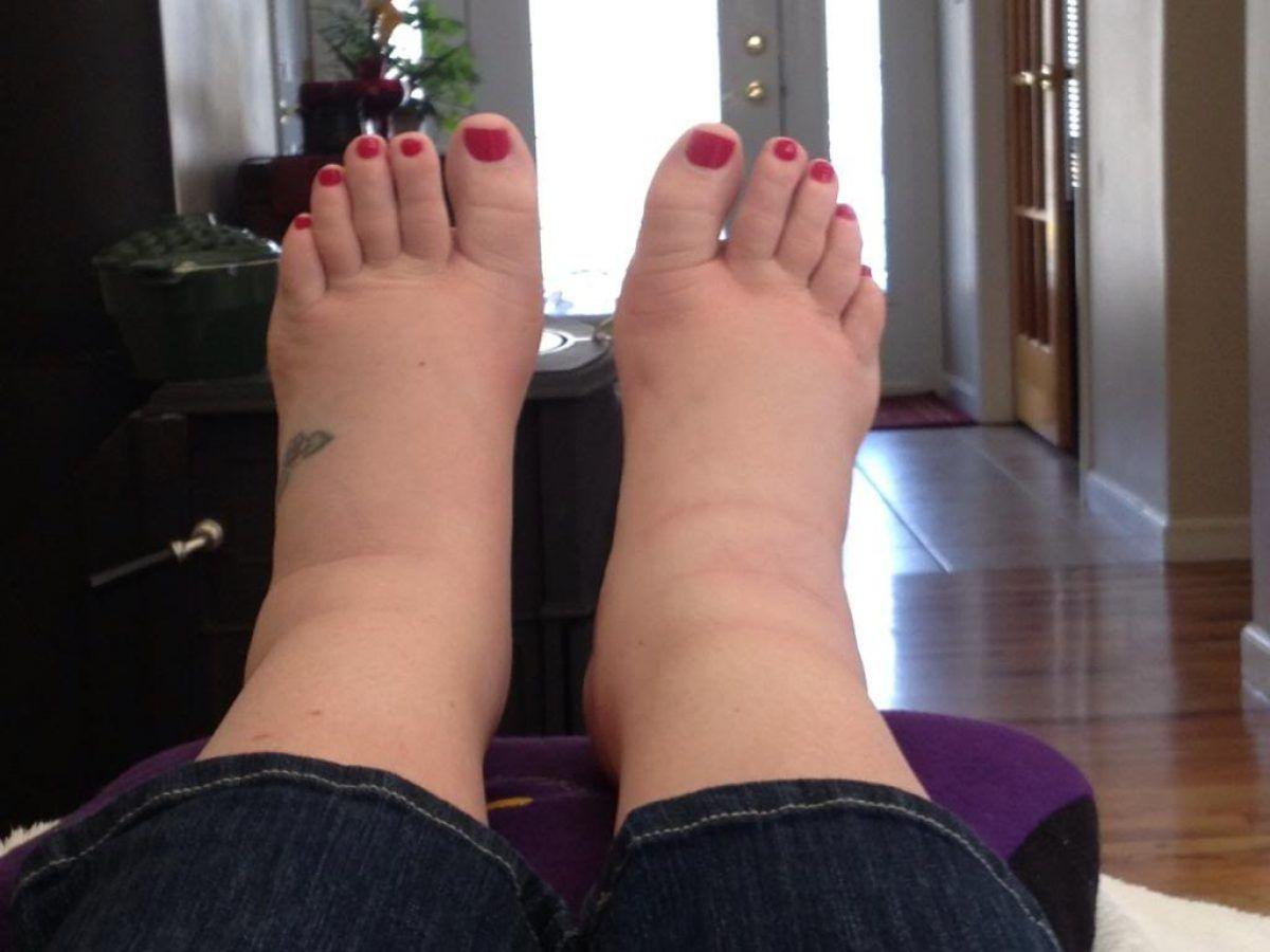 deteriorarea ligamentelor genunchiului cât de multe se vindecă