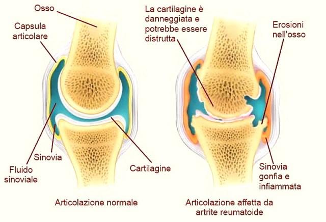 unguente și geluri pentru artroza articulației genunchiului durere în toate articulațiile cu anorexie