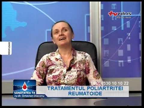 Geluri sau unguente în tratamentul articulațiilor - Tratament comun în kabardinka