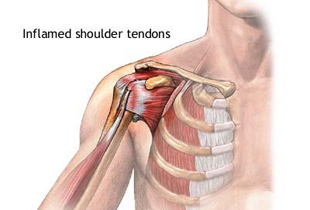 dureri musculare sau de umăr recenzii de top unguente pentru dureri articulare