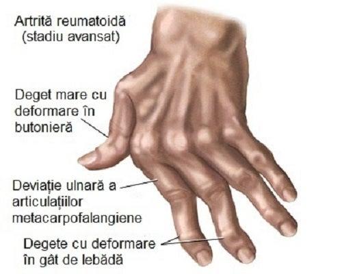 artrita metodelor de tratament ale articulațiilor mâinilor ambulanță cremă din articulații