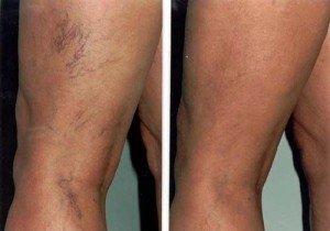 picioare vinete si umflate din dureri articulare și sacru