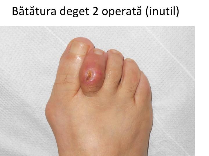 boala articulației cartilajelor pastile pentru boala articulației piciorului
