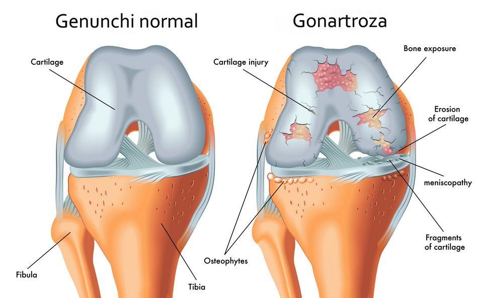 tratamentul artrozei mumiei genunchiului boli de piele la nivelul articulației cotului