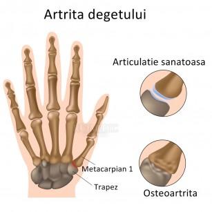 slăbiciunea doare articulațiile Tratamentul articular Kabardinka