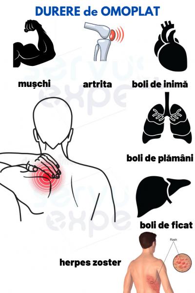 durere în articulațiile mâinilor care radiază spre omoplat tratament de deformare articulară la domiciliu