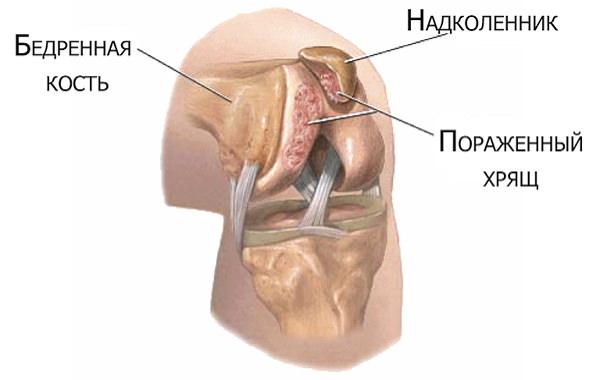 cremă eficientă pentru durerile de genunchi