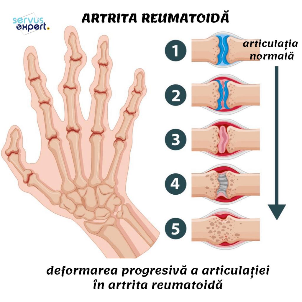 artrita reumatoidă a degetelor deteriorarea umărului de sax de deal