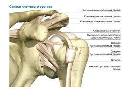 лечение плечевой связки tratamentul artrozei în Sol-Iletsk