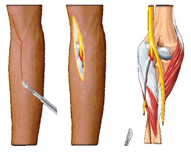artrita de gradul 1 al articulației genunchiului