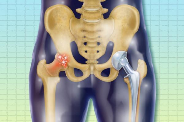 boli profesionale ale articulațiilor picioarelor prețul de glucosamină condroitină în farmacii
