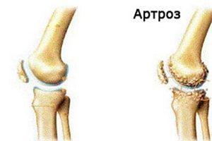 cât de dureros în articulația șoldului boli ale genunchilor