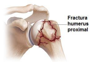 tratamentul fracturilor de umăr tratamentul radiologic al articulațiilor