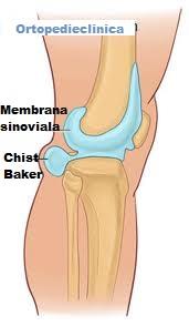 ce durere cu o fractură a genunchiului