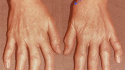 alergări la șold artrita 3 degete ale mâinii stângi
