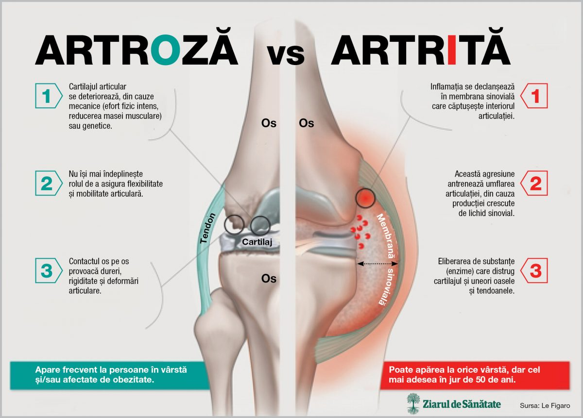 simptomele artrozei articulației șoldului