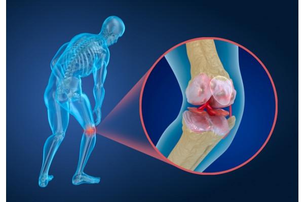 artroza genunchiului la 2 grade de mers efect de gel articular