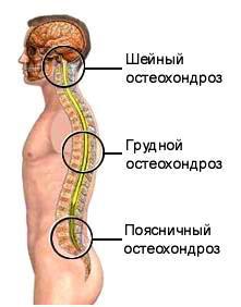 unguent pentru osteochondroza toracică medicament pentru dureri musculare și articulare