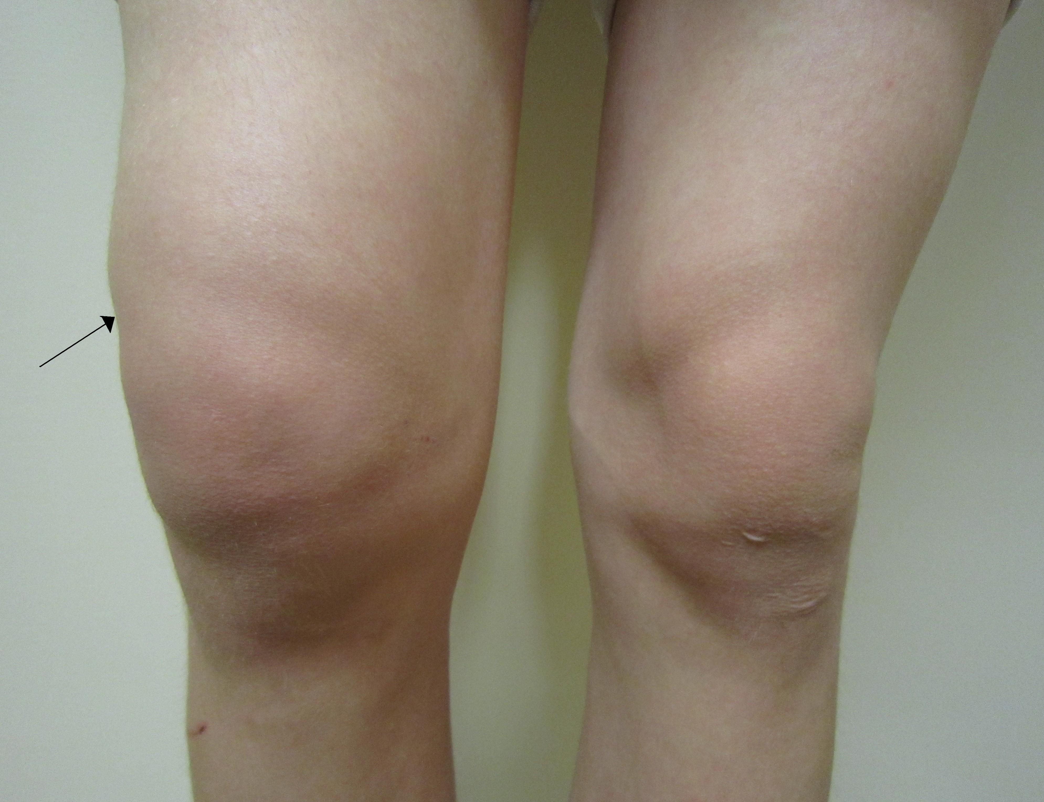 condroprotectoare pentru artroza articulației umărului cauze karmice ale bolii articulare