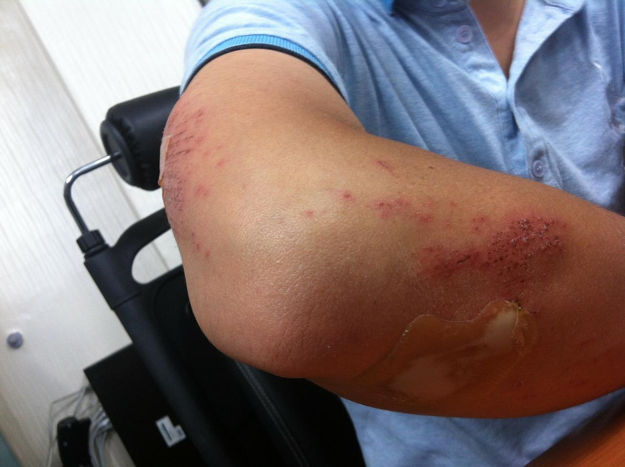 dureri de cot cu traumatisme artroza tratamentului unguent al degetelor de la picioare