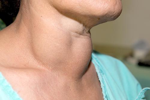 boala ureaplasmei articulare