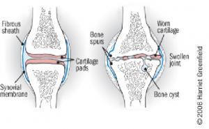 tratament articular crepitus dureri articulare la care medicul