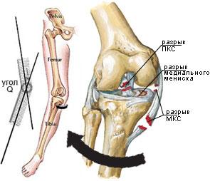 ruperea ligamentelor articulațiilor genunchiului