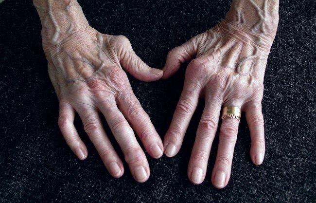 artrita este tratată