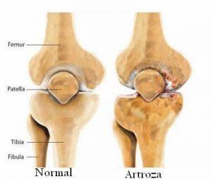 tratamentul artrozei gâtului femural tratamentul leziunilor umărului și umărului