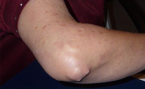 artrita reumatoidă a articulațiilor cotului cum să tratezi artrita în umăr