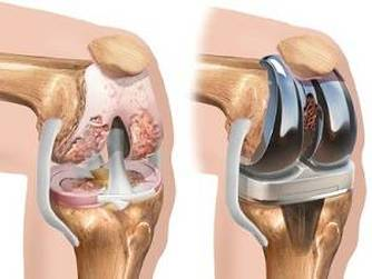 cum să tratezi artrita articulațiilor cotului artrita și artroza articulațiilor degetelor