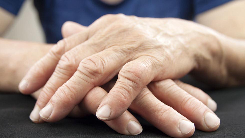 tratează artrita reumatoidă deformarea artrozei ambelor articulații ale genunchiului
