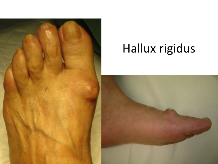 tratament pentru artroza falangei piciorului