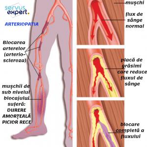 recenzii ale glucozaminei și pielii de condroitină dureri articulare haotice