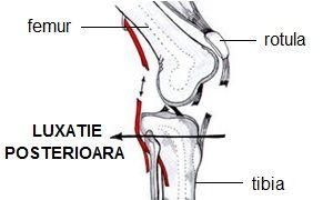 cum să tratezi subluxația genunchiului