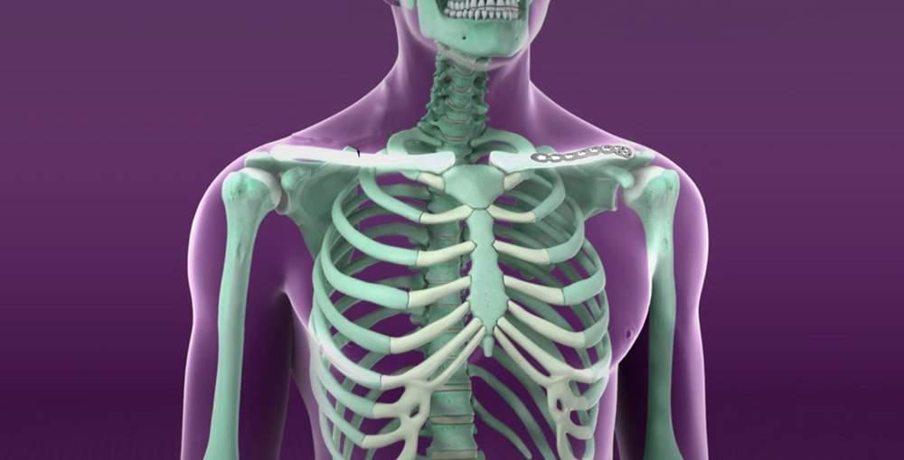 deteriorarea sacului de umăr artrita articulației genunchiului și tratament
