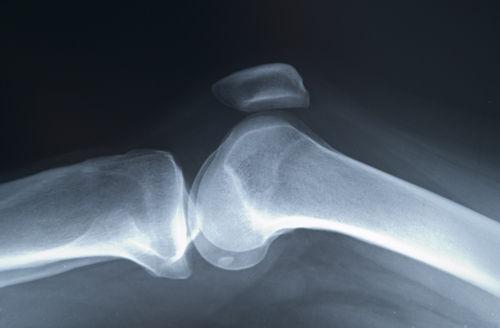 simptome de osteoporoză și tratamentul genunchiului unguent în tratamentul osteocondrozei