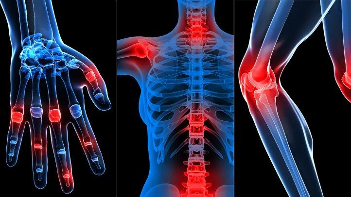 artroza tratamentului arcadelor