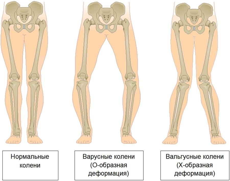 remediu ieftin pentru osteochondroză