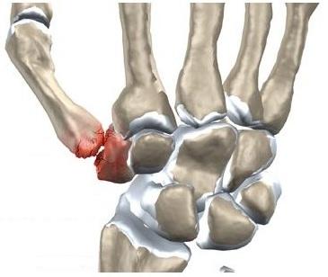 durere în articulația mâinii după o vânătăi articulațiile doare după fumat